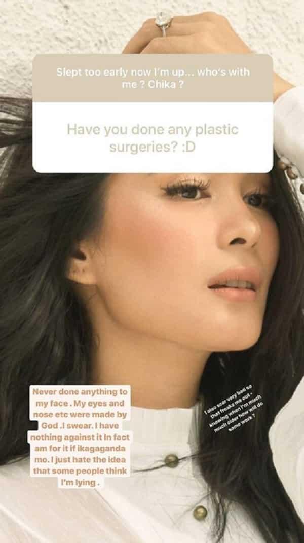 Heart Evangelista denies undergoing plastic surgeries on her face