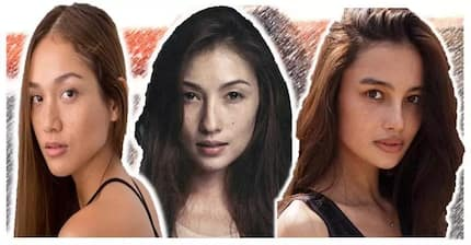Pretty pekas! 12 more gorgeous celebs na beauty pa rin with freckles