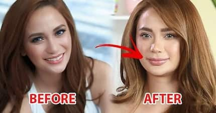Retokada queen na rin siya? Arci Muñoz keeps mum about accusations she underwent lip-injection despite obvious disparity of before after photos