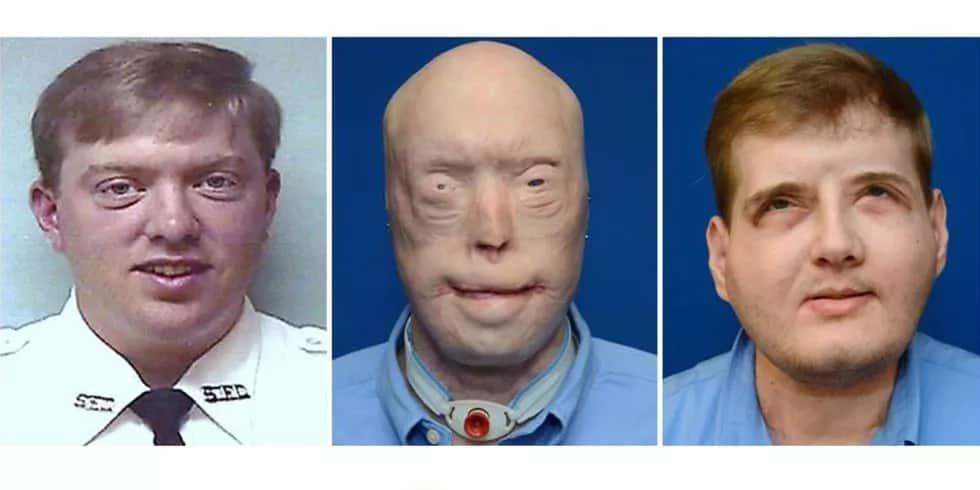 This man received the most extensive face transplant surgery