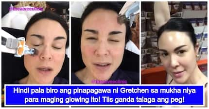 Gretchen Barretto, matindi pala ang tinitiis na sakit para ma-achieve ang glowing skin