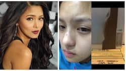 Retokada ba talaga siya? Kim Chiu disproves rumors of having her nose done by showing photographic evidence on Instagram