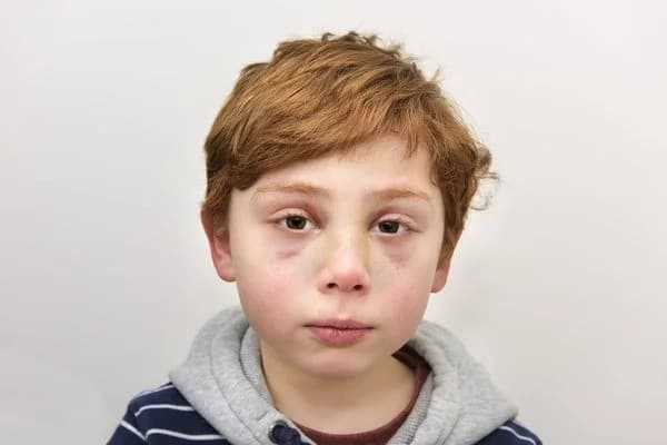 Boy dies after his parents hit him several times