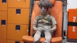 IT IS FAKE! China claims image of injured Syrian boy is part of Western propaganda