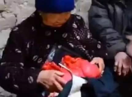 A Chinese Woman Kept Her Internal Organs In A Bag For 20 Years