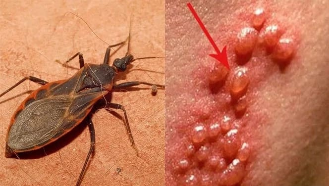 Kissing bugs infecting Filipinos with deadly Chagas disease