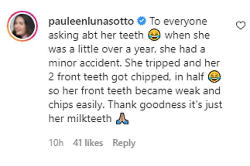 Pauleen Luna recounts minor accident that caused Tali's chipped teeth