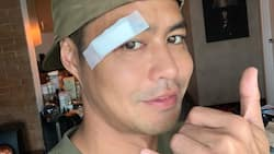 Zanjoe Marudo's video showing how he got injured during the Star Magic All-Star Games goes viral