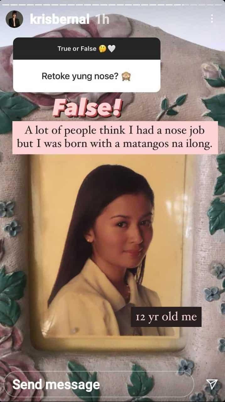 Kris Bernal debunks speculations that she had a nose job