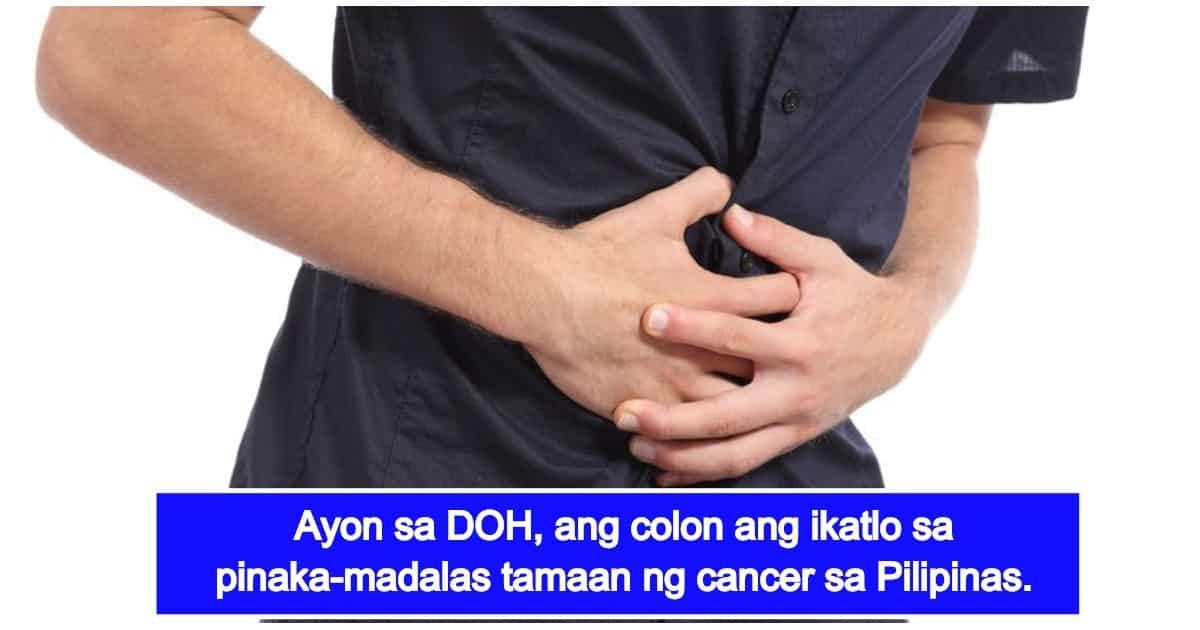 Colon Cancer Mga Sanhi Sintomas At Siagnosis Kami Com Ph